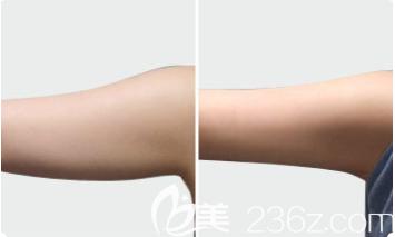手臂抽脂效果图
