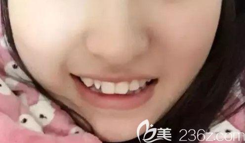 上海中博口腔医院管景红术前照片1