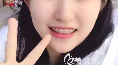 牙齿不齐矫正过程图示