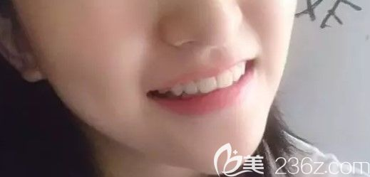 上海中博口腔医院管景红术后照片1