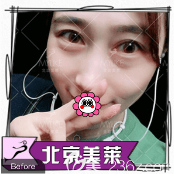 北京美莱医疗美容医院叶宇术前照片1