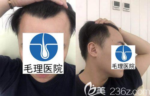 韩国毛理医院李尚郁术前照片1