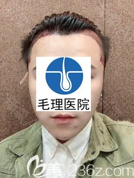 韩国种植发际线+鬓角移植手术当天