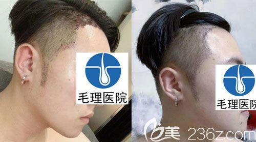 对比国内与韩国植发价格后选韩国毛理医院做鬓角植发+种植发际线图片反馈
