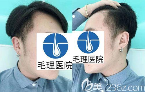 韩国种植发际线图片术后1月恢复图