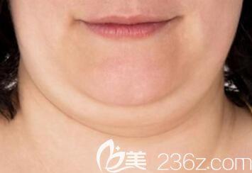 面部脂肪堆积过多导致出现脸大双下巴形成