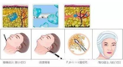 面部吸脂手术过程示意图
