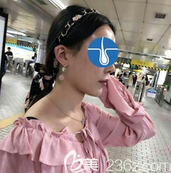 在韩国毛理做发际线移植术后2天