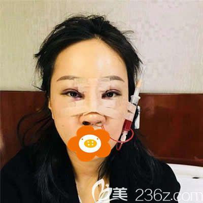 福州美贝尔杨国化为我做肋软骨隆鼻术后第二天效果