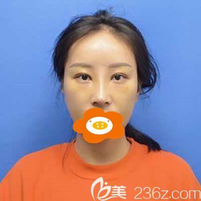 福州美贝尔杨国化为我做肋软骨隆鼻术后一周照片