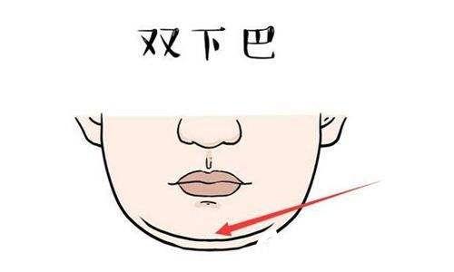 双下巴影响颜值可做抽脂改善