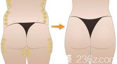 自体脂肪丰臀能够维持多久呢?