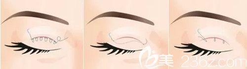 埋线双眼皮手术切口小恢复快