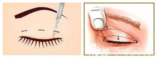埋线双眼皮拆线后眼皮变松弛