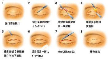 埋线双眼皮拆线后眼皮松弛选择全切进行修复