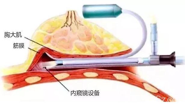 假体隆胸手术图解