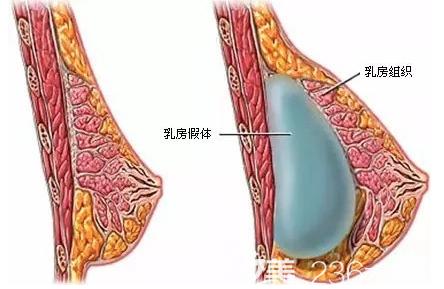 隆胸假体位置