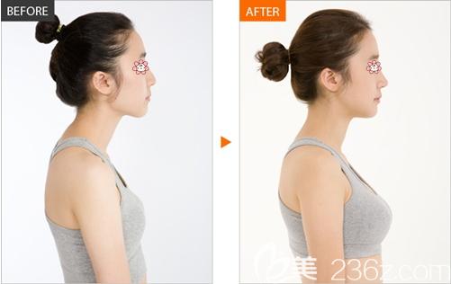 假体隆胸术前术后效果对比