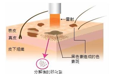 激光分解黑色素的过程