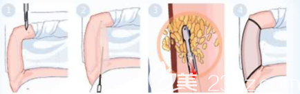 手臂抽脂手术过程图