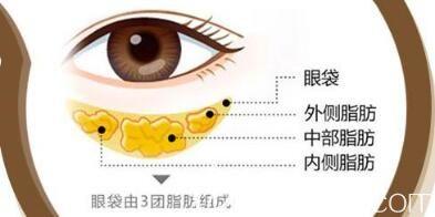 激光去眼袋副作用