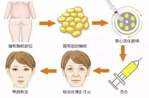 自体脂肪面部填充过程图解