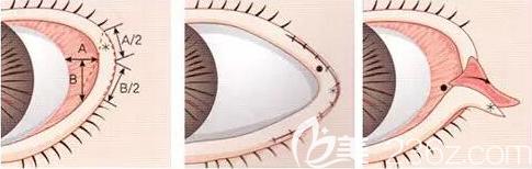 开外眼角手术过程图