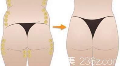 自体脂肪丰臀原理