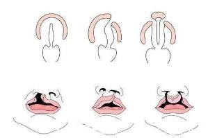 唇腭裂手术示意图