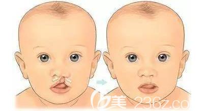 唇腭裂婴儿