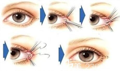 开外眼角容易引起结膜刺激
