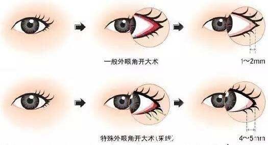 开完眼角容易造成眼球突出