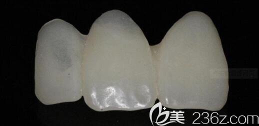 维乐阳光口腔陈德靖介绍前牙贴面的步骤