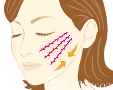 埋线提升多久洗脸可以恢复