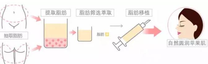 自体脂肪填充苹果肌手术过程图
