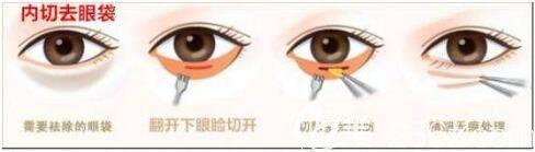 内切去眼袋术后效果怎么样?