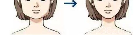 男士瘦脸可以采取轮廓手术方式