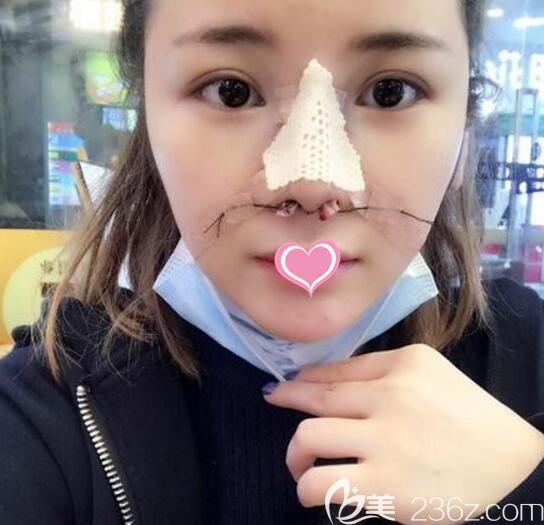 韩国清潭first鼻修复术后第2天真实照片
