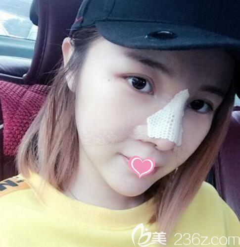 韩国清潭first整形外科医院鼻修复术后3天恢复照片