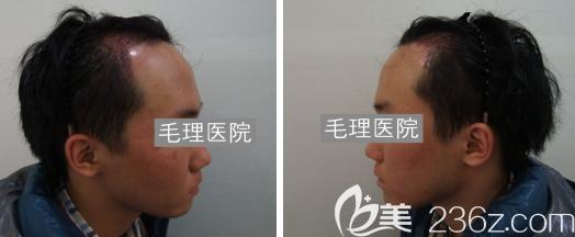 韩国毛理医院植发术后15天恢复效果