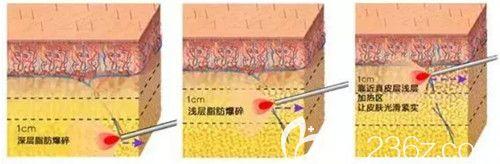激光溶脂瘦脸手术过程