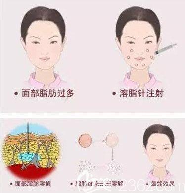 激光溶脂瘦脸效果明显且恢复期短