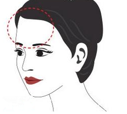凹陷的额部