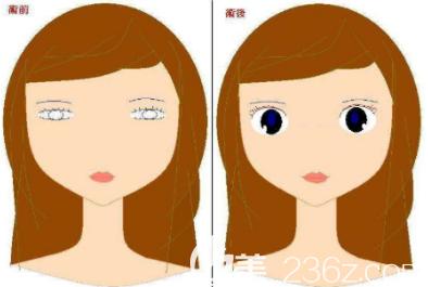 韩式高分子双眼皮手术
