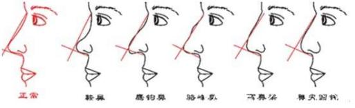 鼻尖的各种形态