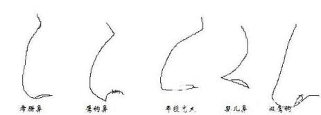 鹰钩鼻的示意图