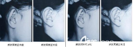 杯状耳案例对比照片