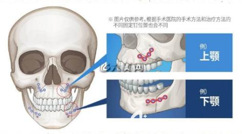磨骨钛钉位置