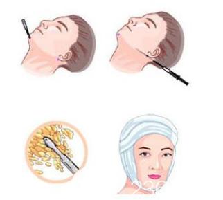 面部吸脂手术示意图