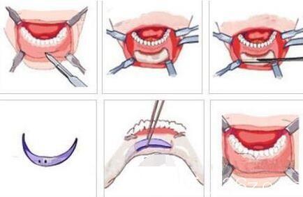 假体垫下巴手术过程示意图